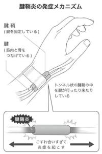 神戸市須磨区はくの接骨院 腱鞘炎 原因