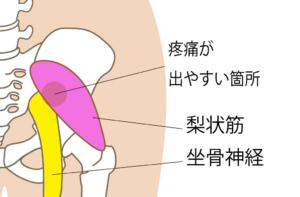 神戸市須磨区はくの接骨院 坐骨神経痛