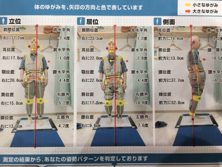 須磨区鷹取はくの接骨院 姿勢分析